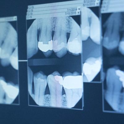 Dental X Ray Liverpool, NY