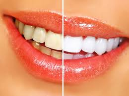Teeth Whitening Liverpool, NY