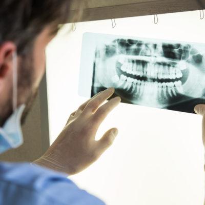 Dental x-ray Liverpool, NY